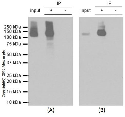 Immunoprecipitation - Anti-SF3B3 antibody [EPR18440] (ab209402)
