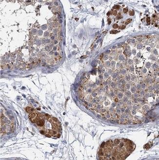 Immunohistochemistry (Formalin/PFA-fixed paraffin-embedded sections) - Anti-ATP9A antibody (ab209418)