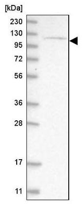 Western blot - Anti-ATP9A antibody (ab209418)