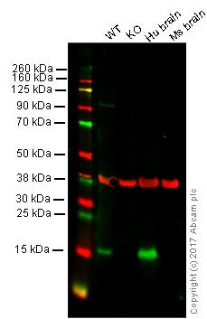 Western blot - Anti-Alpha-synuclein antibody [MJFR1] - BSA and Azide free (ab209420)