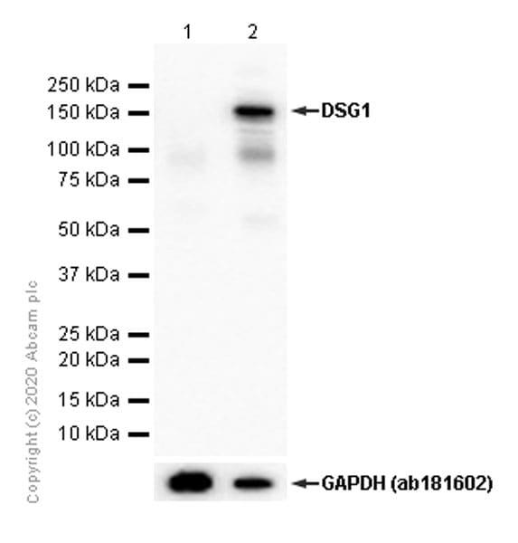 Western blot - Anti-Desmoglein 1/DSG1 antibody [EPR20382] (ab209490)