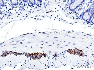 Immunohistochemistry (Formalin/PFA-fixed paraffin-embedded sections) - Anti-Alpha-synuclein aggregate antibody [MJFR-14-6-4-2] - Conformation-Specific (ab209538)