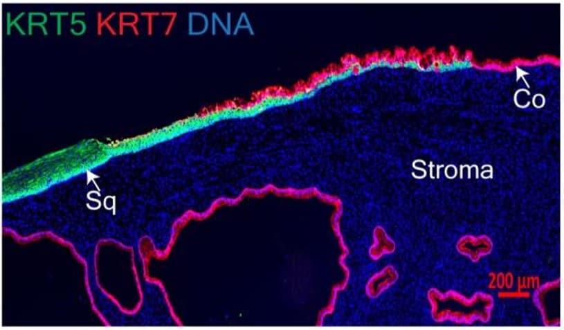 Immunocytochemistry/ Immunofluorescence - Anti-Cytokeratin 7 antibody [EPR17078] (Alexa Fluor® 555) (ab209601)