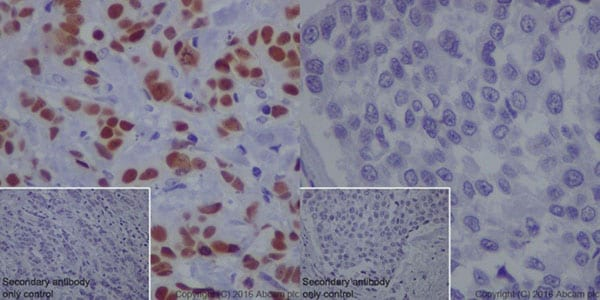 Immunohistochemistry (Formalin/PFA-fixed paraffin-embedded sections) - Anti-TRPS1 antibody [EPR16171] (ab209664)