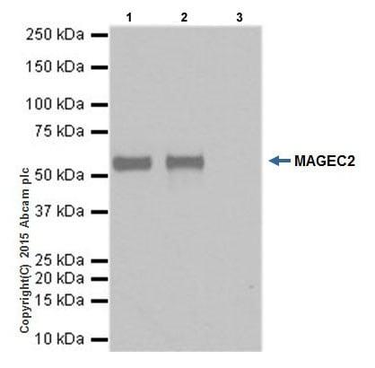 Immunoprecipitation - Anti-MAGEC2 antibody [EPR19064] (ab209667)