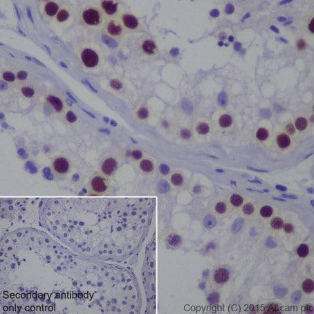 Immunohistochemistry (Formalin/PFA-fixed paraffin-embedded sections) - Anti-MAGEC2 antibody [EPR19064] (ab209667)