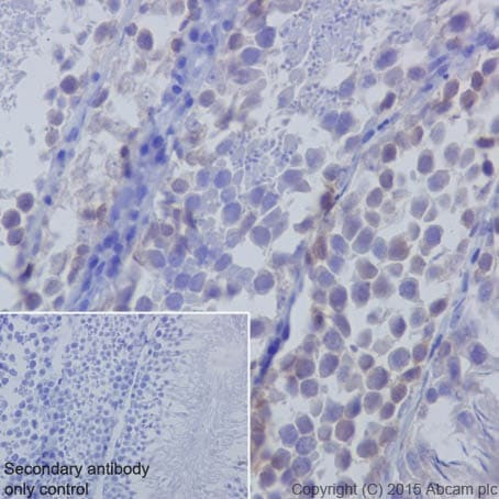 Immunohistochemistry (Formalin/PFA-fixed paraffin-embedded sections) - Anti-Huntingtin antibody [EPR5526] - BSA and Azide free (ab209668)