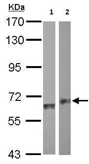 Western blot - Anti-ALDH1A2 antibody (ab209726)