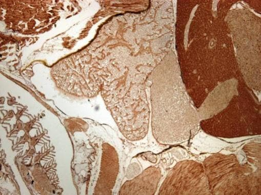 Immunohistochemistry (Formalin/PFA-fixed paraffin-embedded sections) - Anti-RPL7A antibody (ab209732)