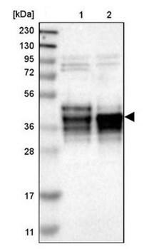 Western blot - Anti-c-Fos antibody (ab209794)