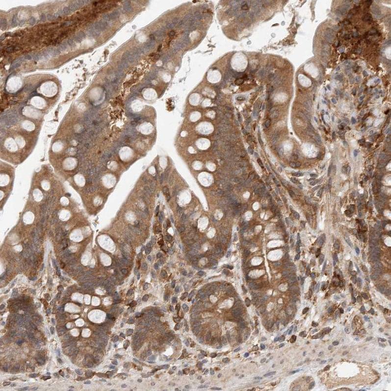 Immunohistochemistry (Formalin/PFA-fixed paraffin-embedded sections) - Anti-NFkB p105 / p50 antibody (ab209795)
