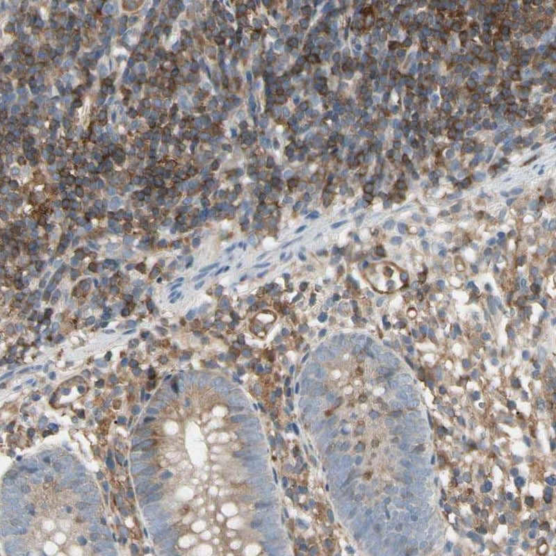 Immunohistochemistry (Formalin/PFA-fixed paraffin-embedded sections) - Anti-NFkB p100/NFKB2 antibody (ab209799)