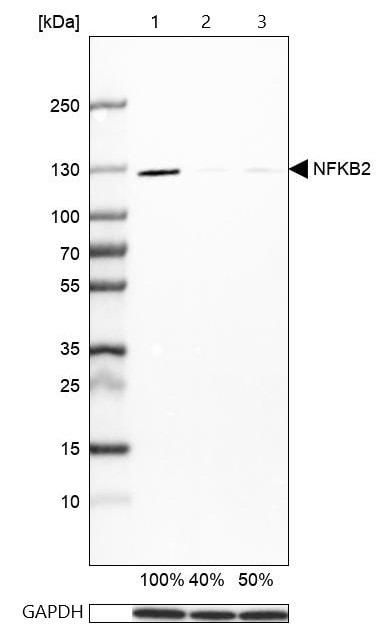 Western blot - Anti-NFkB p100/NFKB2 antibody (ab209799)
