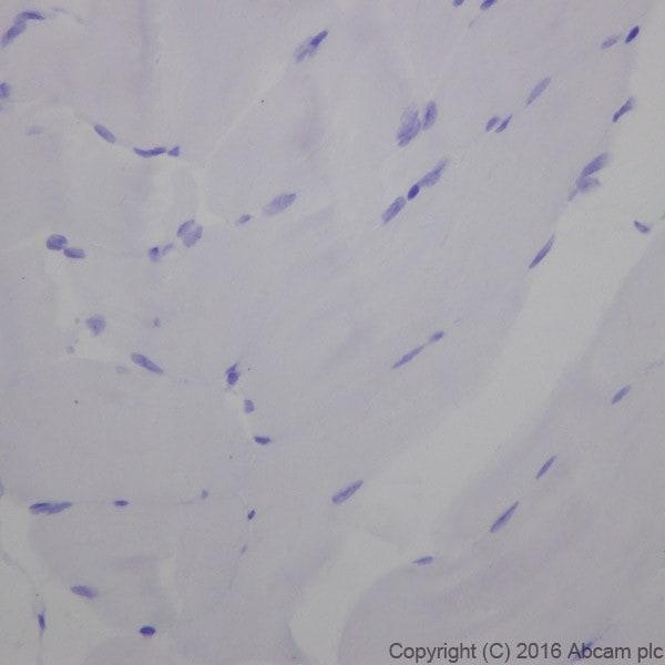 Immunohistochemistry (Formalin/PFA-fixed paraffin-embedded sections) - Anti-Cardiac Troponin I antibody [EPR20307] (ab209809)