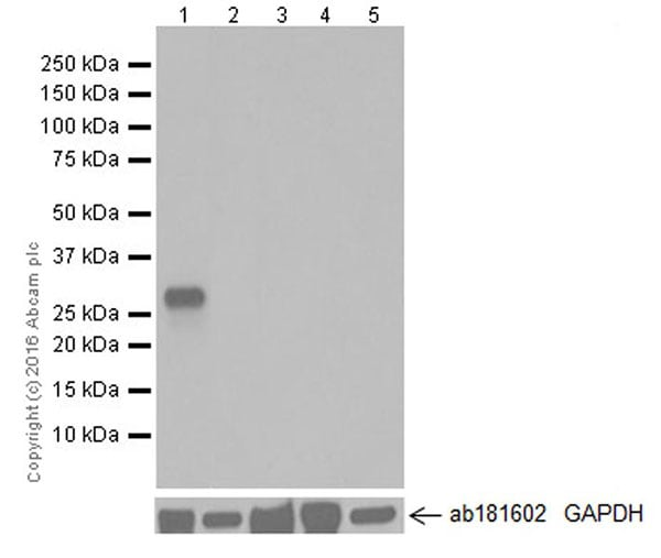 Western blot - Anti-Cardiac Troponin I antibody [EPR20307] (ab209809)