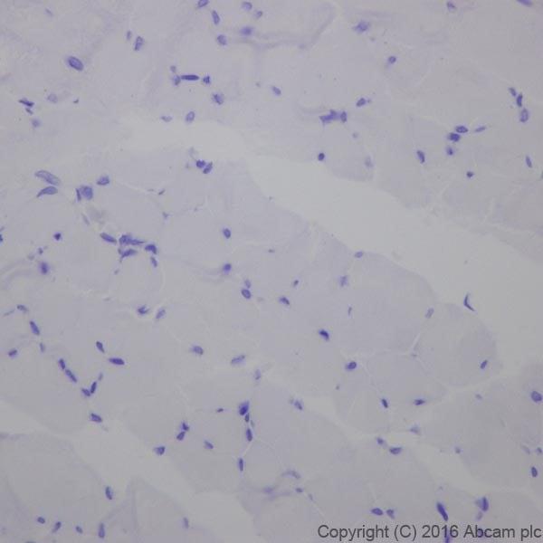 Immunohistochemistry (Formalin/PFA-fixed paraffin-embedded sections) - Anti-Cardiac Troponin T antibody [EPR20266] (ab209813)