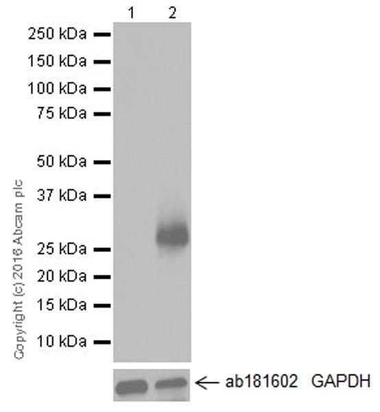 Western blot - Anti-TREM2 antibody [EPR20243] (ab209814)