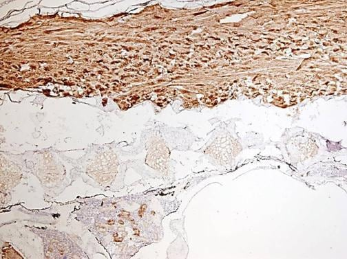 Immunohistochemistry (Formalin/PFA-fixed paraffin-embedded sections) - Anti-gamma Tubulin antibody (ab209831)