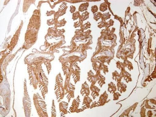 Immunohistochemistry (Formalin/PFA-fixed paraffin-embedded sections) - Anti-Actin antibody (ab209857)