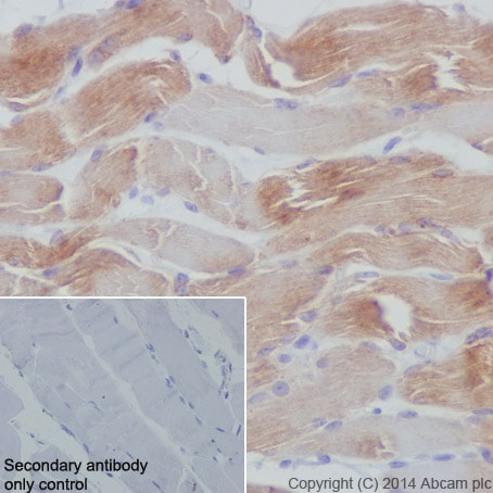 Immunohistochemistry (Formalin/PFA-fixed paraffin-embedded sections) - Anti-Dysferlin antibody [JAI-1-49-3] - BSA and Azide free (ab209877)