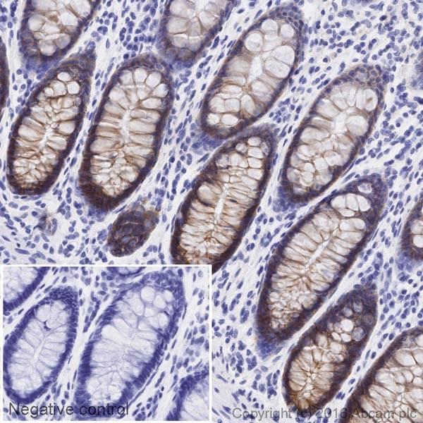Immunohistochemistry (Formalin/PFA-fixed paraffin-embedded sections) - Anti-Integrin alpha 2 antibody [EPR17338] - C-terminal (HRP) (ab209944)