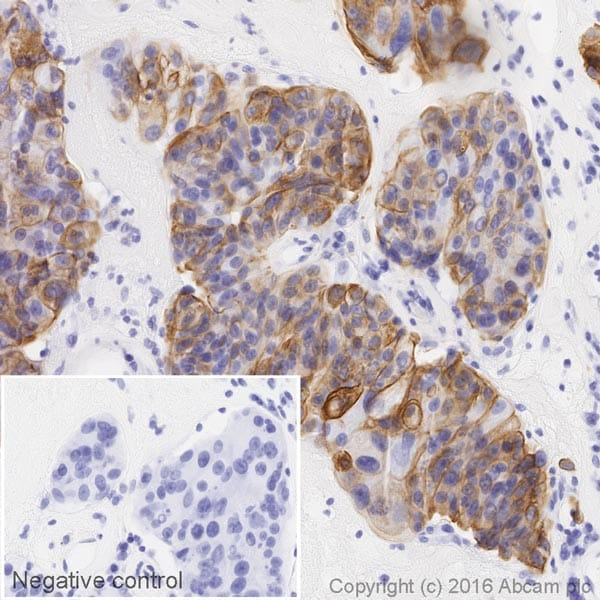 Immunohistochemistry (Formalin/PFA-fixed paraffin-embedded sections) - HRP Anti-Cytokeratin 7 antibody [EPR17078] (ab209945)