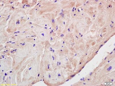 Immunohistochemistry (Formalin/PFA-fixed paraffin-embedded sections) - Anti-Corin antibody (ab209963)