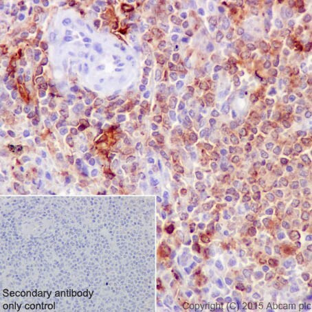 Immunohistochemistry (Formalin/PFA-fixed paraffin-embedded sections) - Anti-HLA-DR antibody [EPR3692] - BSA and Azide free (ab209968)