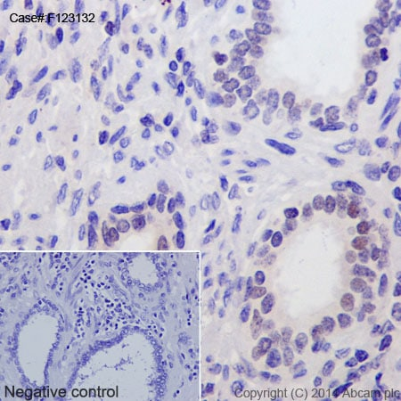 Immunohistochemistry (Formalin/PFA-fixed paraffin-embedded sections) - Anti-Androgen Receptor (AR-V7 specific) antibody [EPR15656] - BSA and Azide free (ab209972)