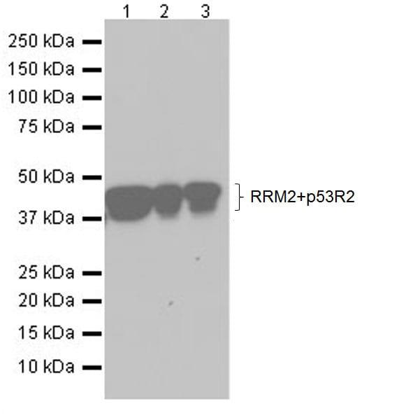 Western blot - Anti-p53R2 + RRM2 antibody [EPR20651] (ab209995)