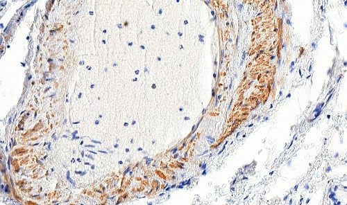 Immunohistochemistry (Formalin/PFA-fixed paraffin-embedded sections) - Anti-alpha smooth muscle Actin antibody (ab21027)