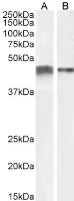 Western blot - Anti-alpha smooth muscle Actin antibody (ab21027)