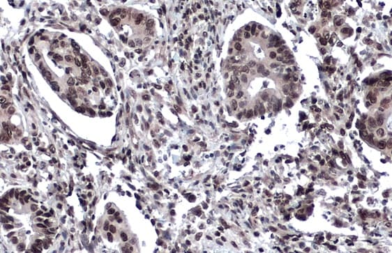 Immunohistochemistry (Formalin/PFA-fixed paraffin-embedded sections) - Anti-53BP1 antibody (ab21083)