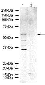 Western blot - Anti-Kv1.6/RCK2 antibody (ab21089)