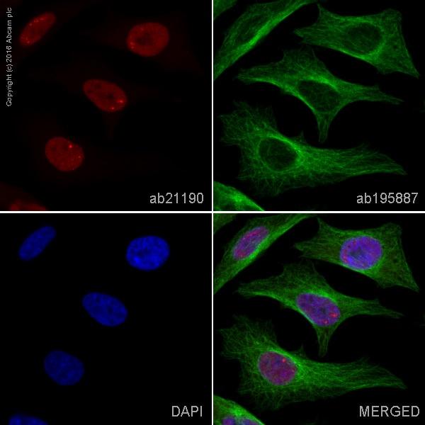 Immunocytochemistry/ Immunofluorescence - Anti-SCG10 antibody (ab21190)