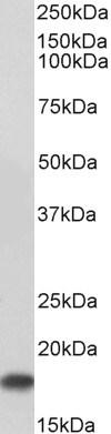 Western blot - Anti-UBE2I / UBC9 antibody (ab21193)