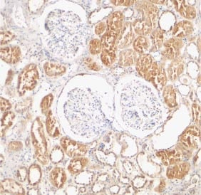 Immunohistochemistry (Formalin/PFA-fixed paraffin-embedded sections) - Anti-XIAP antibody (ab21278)
