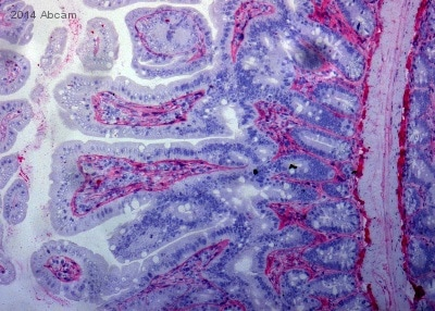Immunohistochemistry (Formalin/PFA-fixed paraffin-embedded sections) - Anti-Collagen I antibody (ab21286)