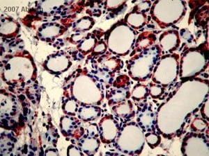 Immunohistochemistry (Formalin/PFA-fixed paraffin-embedded sections) - Anti-DDDDK tag (Binds to FLAG® tag sequence) antibody (ab21536)