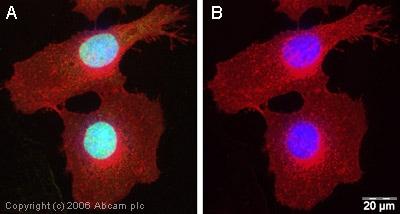 Immunocytochemistry/ Immunofluorescence - Anti-SMC1A antibody (ab21583)