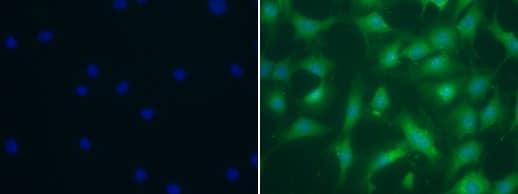 Immunocytochemistry - Anti-Elastin antibody (ab21610)