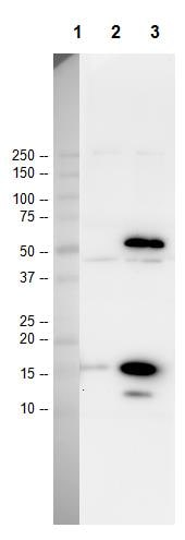 Western blot - Anti-acetyl Lysine antibody - ChIP Grade (ab21623)