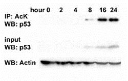Immunoprecipitation - Anti-acetyl Lysine antibody - ChIP Grade (ab21623)