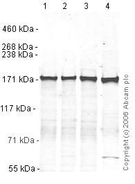 Western blot - Anti-Clathrin heavy chain antibody (ab21679)