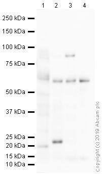 Western blot - Anti-IRF5 antibody - ChIP Grade (ab21689)