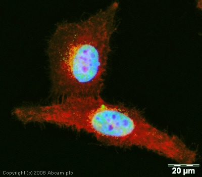 Immunocytochemistry/ Immunofluorescence - Anti-DDX5 antibody (ab21696)