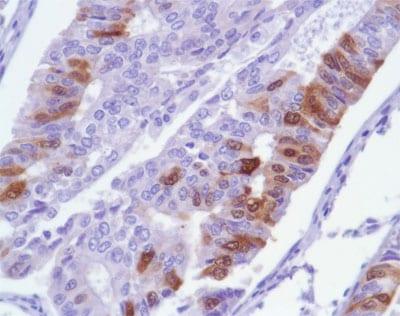 Immunohistochemistry (Formalin/PFA-fixed paraffin-embedded sections) - Anti-Ki67 antibody [SP6], prediluted (ab21700)