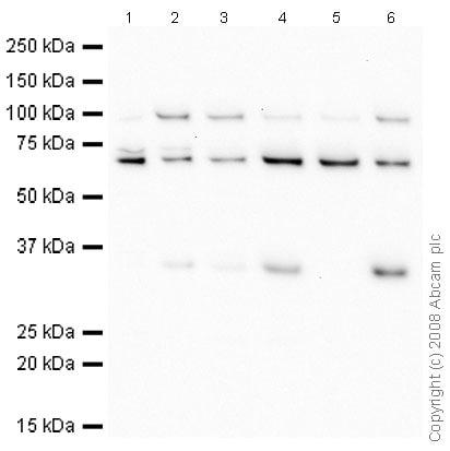 Western blot - Anti-cbx7 antibody - ChIP Grade (ab21873)