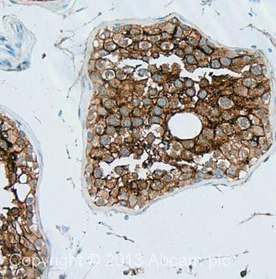 Immunohistochemistry (Formalin/PFA-fixed paraffin-embedded sections) - Anti-CD147 antibody [MEM-M6/2] (ab21903)