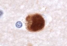 Immunohistochemistry (Formalin/PFA-fixed paraffin-embedded sections) - Anti-Alpha-synuclein antibody (ab21976)
